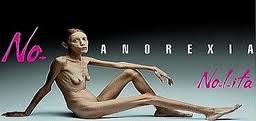 Isabelle Caro per la campagna anti anoressia di Oliviero Toscani