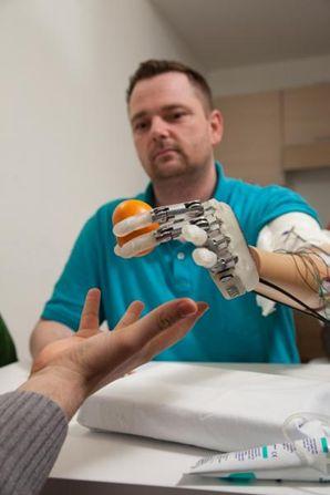 mano bionica sensibile